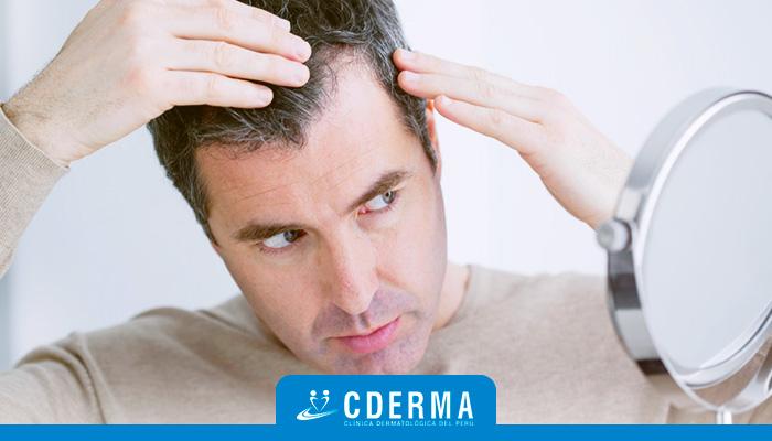 Qué Es La Mesoterapia Capilar Cderma