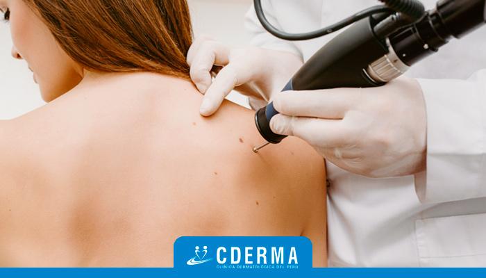 Mejores Dermatólogos En Lima