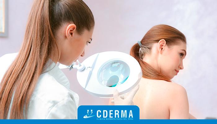 Servicio De Dermatología En Lima