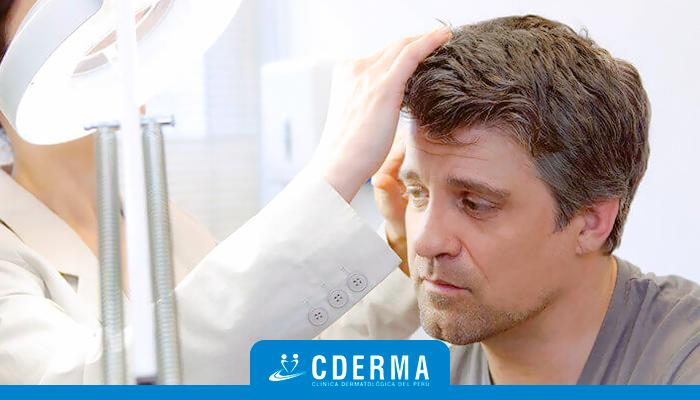 revision capilar cderma