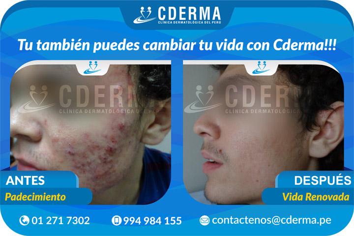 Tratamiento Laser para acne rosace - Cderma.pe