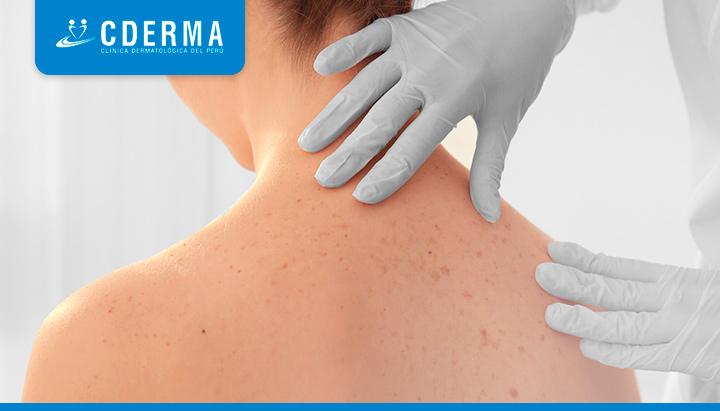 biopsia de piel cderma