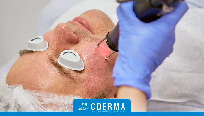 laser tratamiento acne