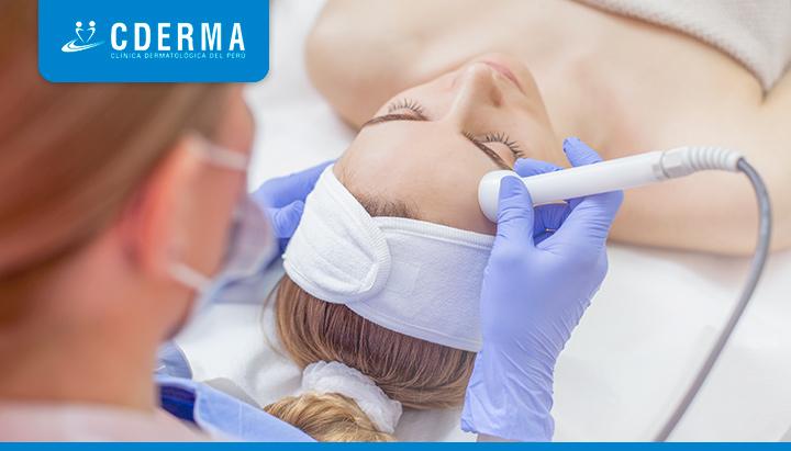 rejuvenecimiento facial con laser